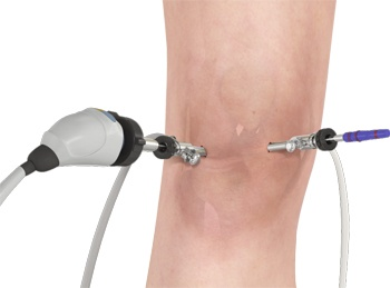 knee-arthroscopy1
