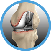 knee revision resurgery