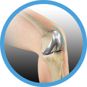 minimally invaise knee